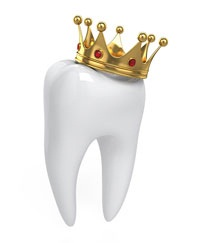 CEREC One Visit Crowns